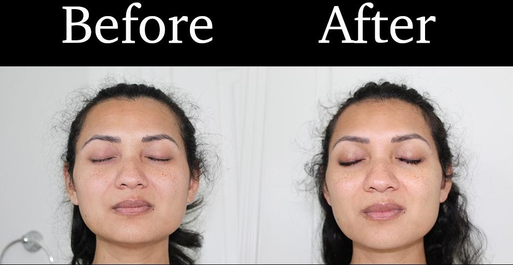 My Final Results with PMD Personal Microderm at To Thine Own Style Be True